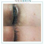 Neaskin voor en na
